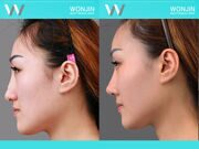 Rhinoplasty-in_korea_befor-and-after-01