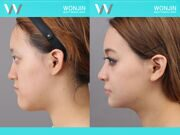 Rhinoplasty-in_korea_befor-and-after-02