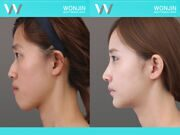 Rhinoplasty-in_korea_befor-and-after-06
