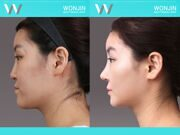 Rhinoplasty-in_korea_befor-and-after-03