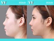 Rhinoplasty-in_korea_befor-and-after-05