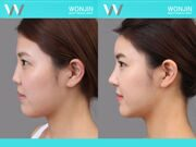 Rhinoplasty-in_korea_befor-and-after-04
